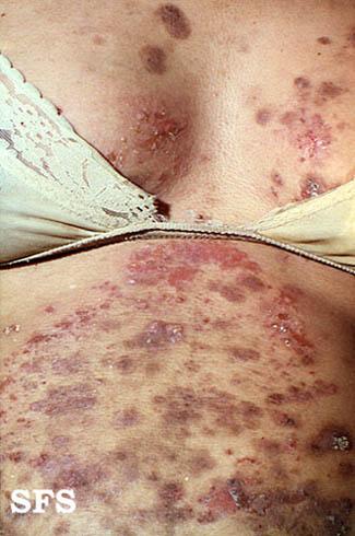 Дерматоз у беременных на животе фото 56